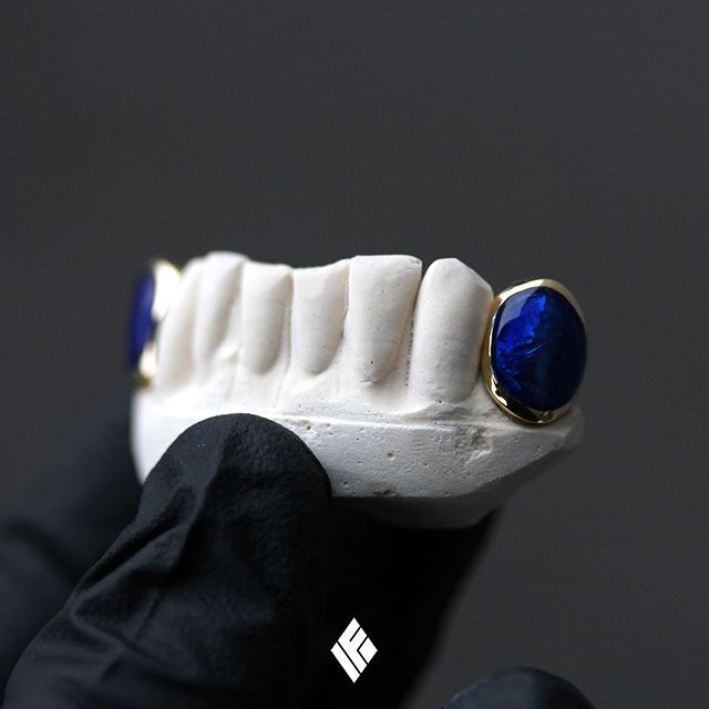 Solid 14K Yellow Gold Bottom 2-Cap Grill Set Finished With Blue Enamel. Custom made for @julesgayton  #Grillz #GoldTeeth #CustomJewelry #IFANDCO