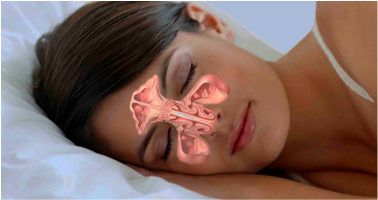 Sinusitis Treatment - deep pain with pressure above your nose or in between your eyes coupled with a splitting headache