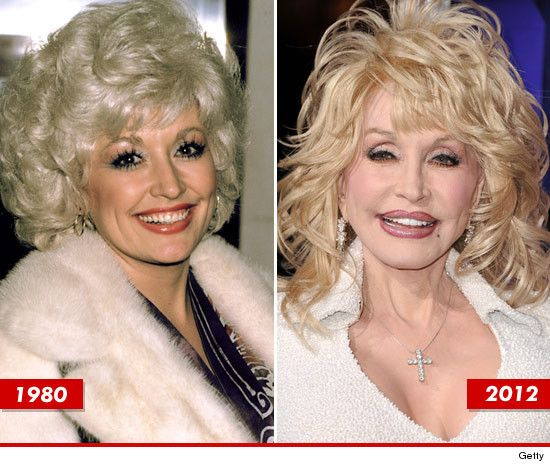 Dolly Parton: Good Genes or Good Docs?  It´s obvious she´s had work done, perhaps a bit too much.