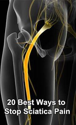 1. What is Sciatica? | Best Ways to Stop Sciatica Pain   | #sciatica_treatment #sciatica_relief #sciatic_nerve_relief #treatment_for_sciatica #sciatic_nerve_pain_relief #sciatica_cure  #howtotreat_sciatica