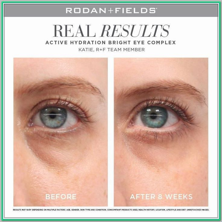Read This To Learn All About Eye Care For Dark Circles