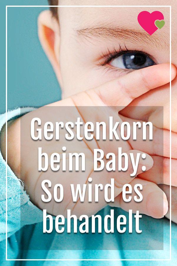 Gerstenkorn Am Auge Behandlung Beim Baby Gerstenkorn