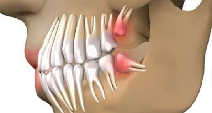 Nincs szükség implantátumra, a fogak 63 nap alatt kinőnek ezzel a technikával!