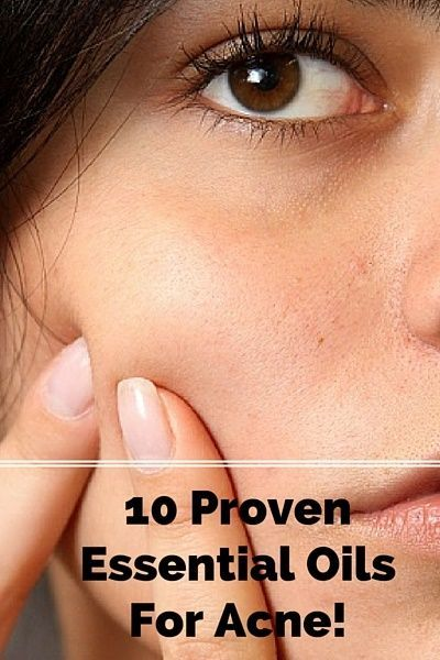 10 Proven Essential Oils For Acne