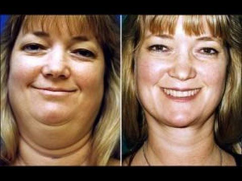 How to Lose Face Fat Fast NO EXERCISE- Learn How to Lose Face Fat Quickly with 3 Simple Steps - YouTube