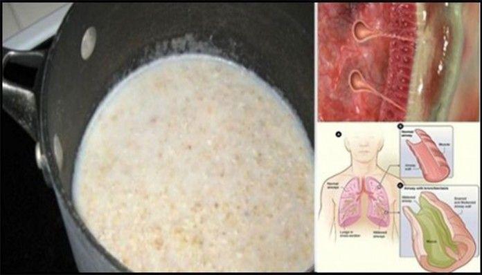Tento jednoduchý sirup vyčistí hlieny z pľúc a výrazne zvýši vašu imunitu