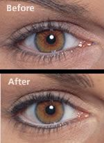 Permanent Make Up Eyeliner Before & After Pictures