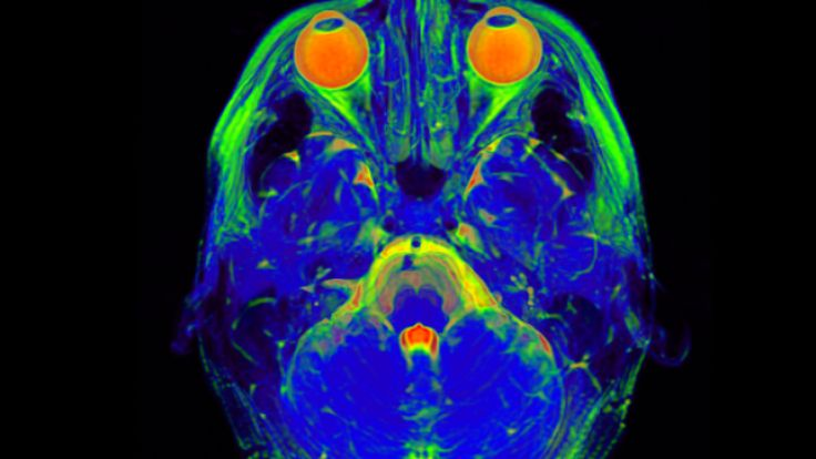 Exciting new research findings on the genetic underpinnings of Schizophrenia