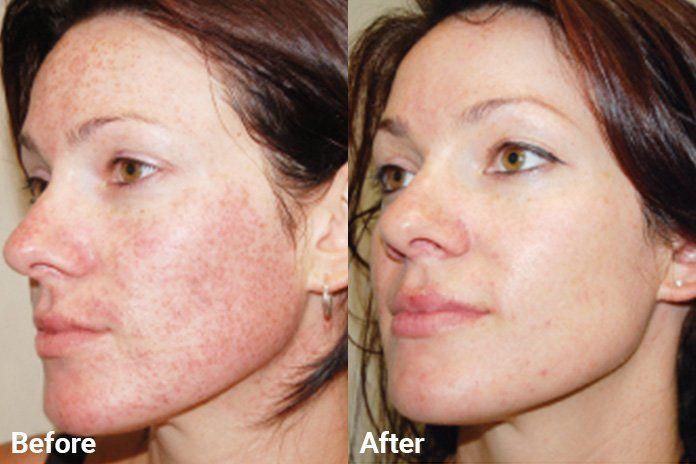 IPL | Skin Institute