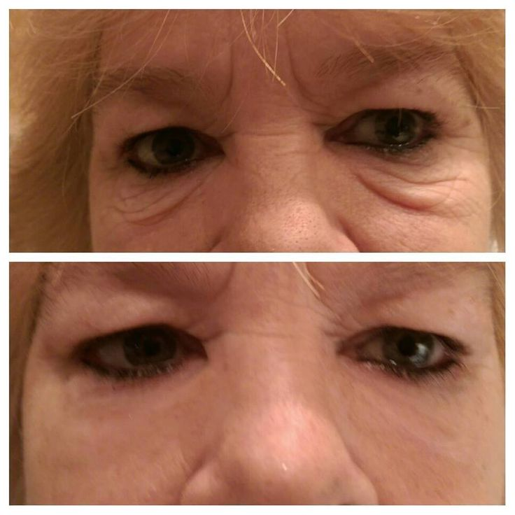 More amazing results in just after 2 minutes.  http://2minuteskinmiracle.com/CP1/?u=871