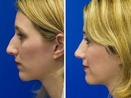 Find a reliable and trustworthy rhinoplasty doctor to guide you through the process and to undertake your surgery.