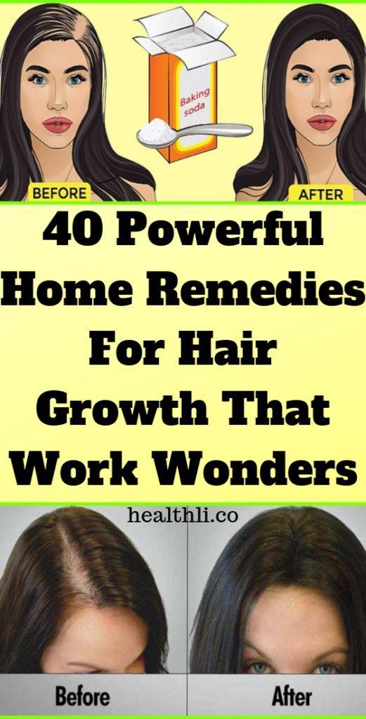 40 starke Hausmittel gegen Haarwuchs, die Wunder wirken !!!, #die # für …   – Hair
