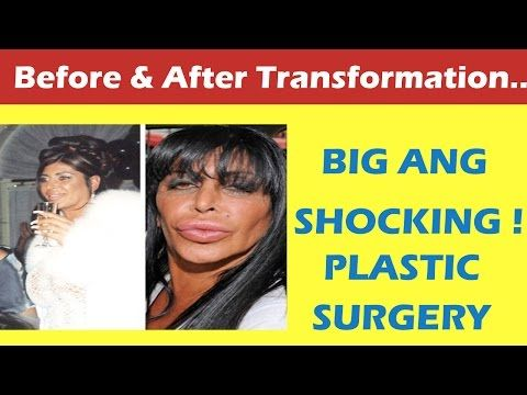 Big Ang Plastic Surgery Before and After Full HD - YouTube