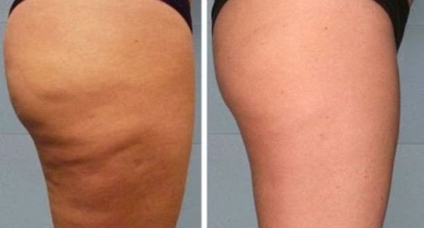 How To Treat Cellulite Naturally