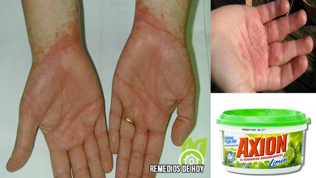 DERMATITIS alérgia por jabones (Tratamiento)