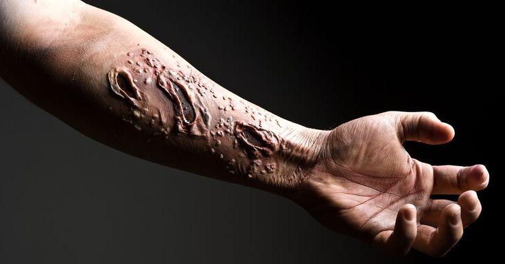 Cómo curar un queloide. Los queloides son desagradables y, a veces, dolorosas cicatrices que se producen cuando el cuerpo reacciona a la presencia de una lesión, produciendo una cicatriz muchas veces más grande que la herida original. Los queloides también pueden estar potencialmente infectados, lo que podría suponer un grave riesgo para la salud, y generalmente ...