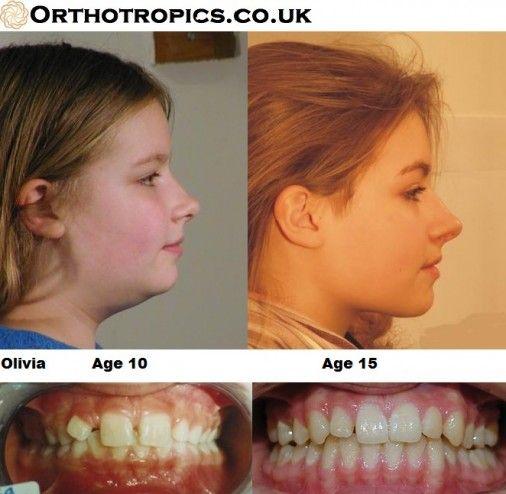 facial case study Case study: facial burn & diaper rash pcca pracasil™-plus pediatrics usa: 18003312498 wwwpccarxcom l canada: 18006689453 wwwpccarxca l australia: 029316.