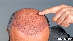 Male baldness 'indicates heart risk'