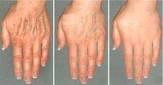 3 domáce recepty na odstránenie vrások a pigmentových škvŕn z rúk a tváre.