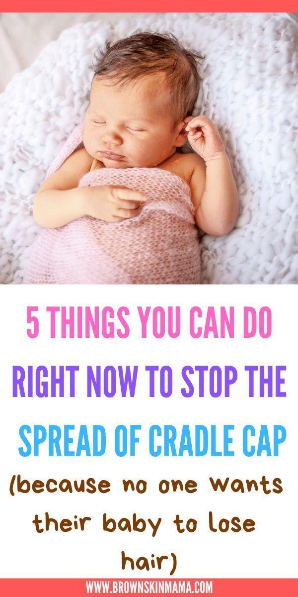 How To Prevent Cradle Cap In Babies Postpartum Brown Skin Mama Baby Cradle Cap Cradle Cap Newborn Care