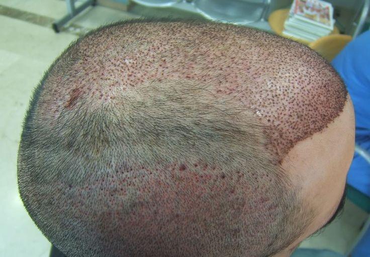 CLIQUE AQUI! Implante de cabelo é realmente a última opção? O implante de cabelo é um meio muito recorrente para quem está com problemas de queda capilar é o implante, método já difundido por todo o país. Mas ele é c http://saudenocorpo.com/implante-de-cabelo-e-realmente-a-ultima-opcao/