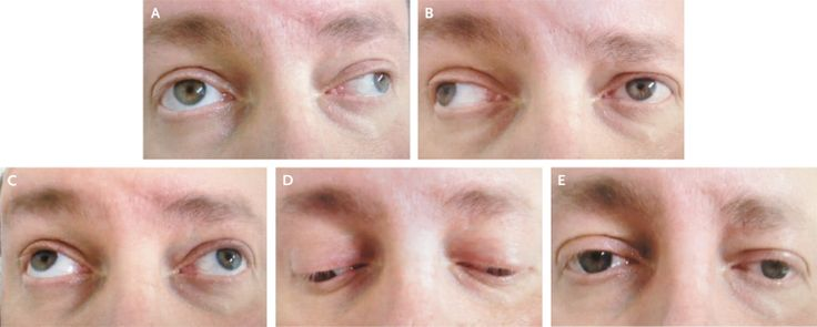 Bilateral Internuclear Ophthalmoplegia in Multiple Sclerosis — NEJM