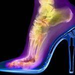stiletto giydiginizde ayak kemikleriniz bu sekilde gorunuyor ve bu yuzden bazilari icin aci verici