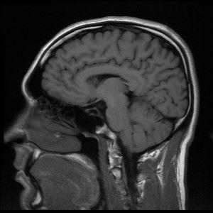L'Atteggiamento Positivo è nel Cervello. Secondo gli scienziati della University of Oxford, stili di vita diversi corrispondono a diversi collegamenti tra le aree del cervello. Lo studio su Nature Neuroscience