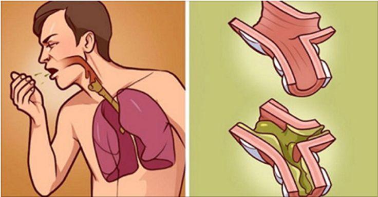 A tosse pode ter várias causas: asma, bronquite, alergia, resfriados, doenças da garganta...É um mal que incomoda bastante, especialmente quando ocorre na hora de dormir, pois atrapalha o sono não só da vítima, mas também dos que estão perto.