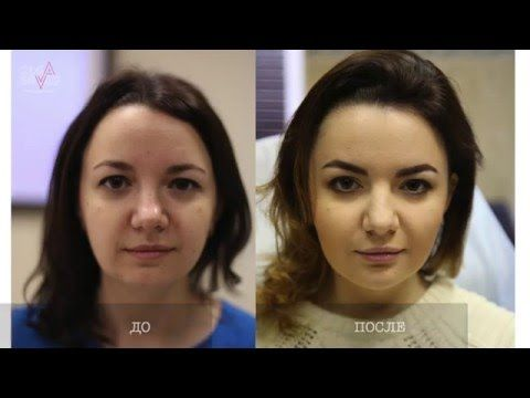 """Красивое лицо - моделирование по маске """"золотого сечения"""""""