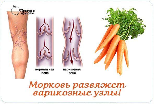 Мне посоветовали прикладывать к больным местам тертую морковку. Я по вечерам терла морковь (желательно, чтобы она была сочная и не старая) и прикладывала к узлам. Обвязывала ее полиэтиленом и укрепляла на ноге. Так шла спать. Знаете, дармовая морковка действует ничуть не хуже импортных гелей! С ног спадал отек, исчезала тяжесть, вены становились менее заметными.