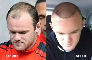 Wayne Rooney - 50 Celebrities Who Have Had Hair Transplants
