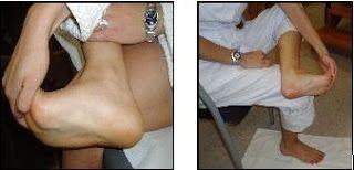 Dolor en el talón (talalgia) - Fascitis Plantar ~ TRITIM - TRIATLON ROSARIO