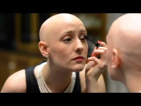 Smooth is Beautiful - Hair loss caused by Alopecia