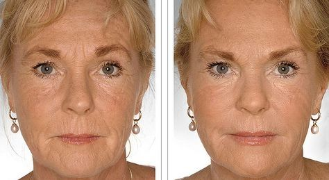 Facial Yoga Exercises For A Fantastic Holistic Facelifts For Guys And Ladies
