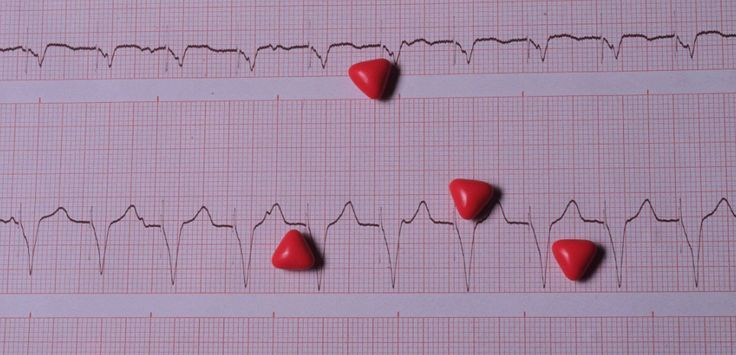 Cardiologie : comment prévenir la fibrillation auriculaire