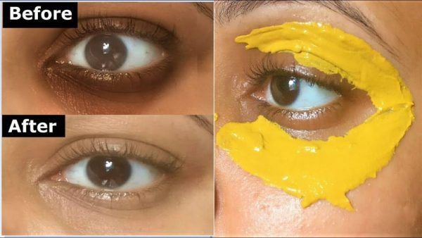 Why You Should Apply A Turmeric Mask Around The Eyes Remove