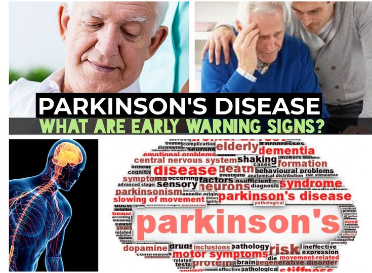 Approximately one million adults in the USA are thought to live with Parkinson's disease; over 60,000 are diagnosed annually.