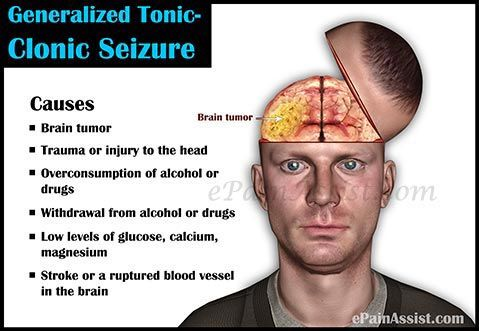 Generalized Tonic-Clonic Seizure or Grand Mal Seizure Read: http://www.epainassist.com/brain/generalized-tonic-clonic-seizure-or-grand-mal-seizure
