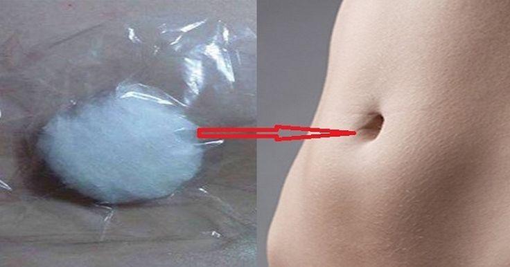Un batuffolo di cotone e alcool nell'ombelico per curare tosse, raffreddore, dolori mestruali e muscolari.