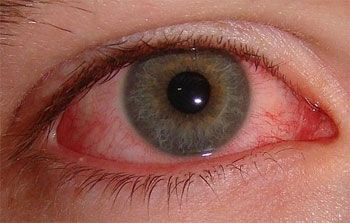 How do eyes become bloodshot? | Visiondirect.co.uk Blog – Contact lenses – Eye care