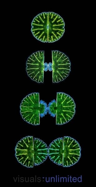 Stages of cell division of the Desmid (Micrasterias thomasiana), a Green Algae found in bogs and marshes