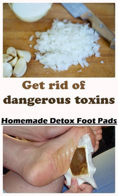 Get rid of dangerous toxins with Homemade Detox Foot Pads - Made it three days ago and I was scared about that brown color...huh