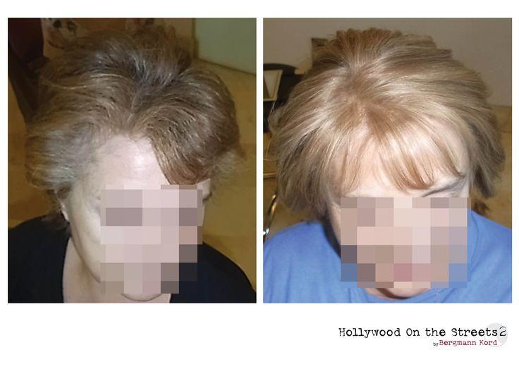 www.kord.gr & www.fuehairclinic.eu HOS-2. Αποκατάσταση μαλλιών στους ογκολογικούς ασθενείς. Εικόνες πριν και μετά τις χημειοθεραπείες.