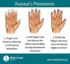 Do You or Someone You Know Have Raynaud's? RAYNAUD'S phenomenon or disease, simply put, is a problem with blood flow. Learn the symptoms, causes, treatments and how to prevent attacks in this informative blog! http://www.mollysfund.org/2013/09/raynauds-disease-raynauds-phenomenon-symptoms-causes-treatments-prevention/