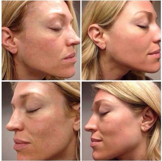 Chemische peeling, wat is dat? Bij een chemische peeling brengen we een vloeibare oplossing aan op de huid. Deze oplossing bestaat uit één of meerdere zuren of enzymen die in staat zijn om oppervlakkig tot middeldiep in de huid te dringen. Laagje voor laagje verweken ze de huid. We spreken van een chemische peeling omdat het verweken van de huid een chemisch proces is