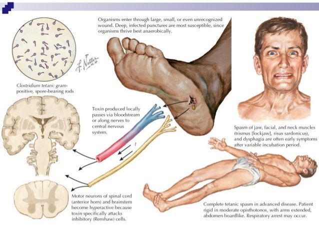 Progress Against Tetanus H.I.V. and Malaria http://ift.tt/2wPOxwe