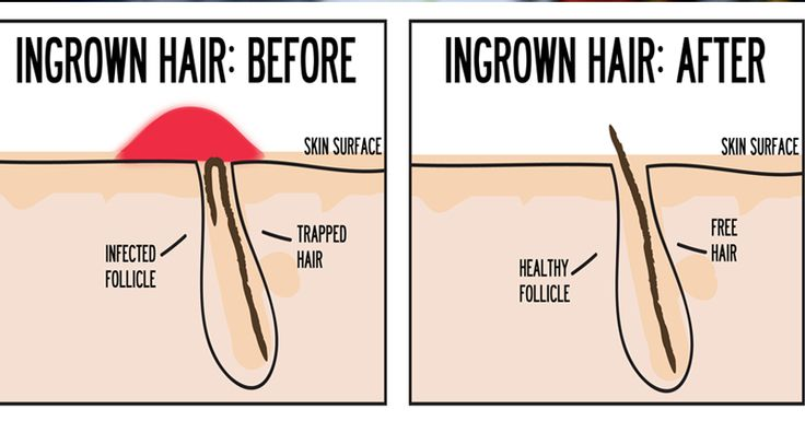Sometimes painful, often gross, ingrown hairs are best when they're not around. Ingrown hairs form under the skin when hair follicles don't grow up ...