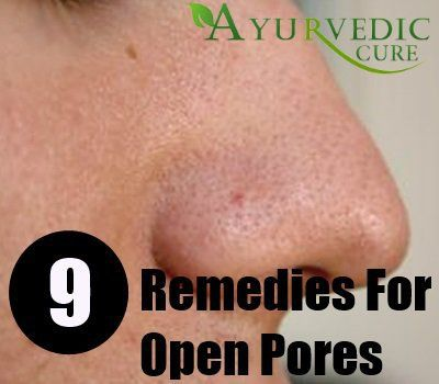 Open Pores Home Remedies, Natural Treatments and C…