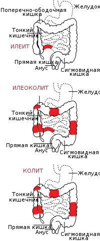 Болезнь Крона — Википедия